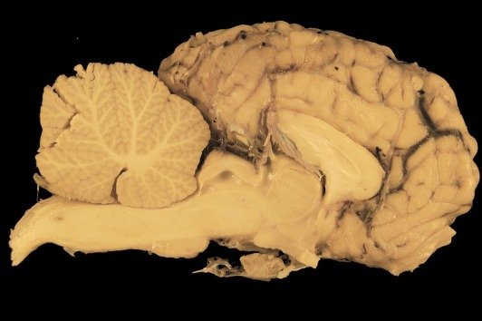 brain-114079_960_720